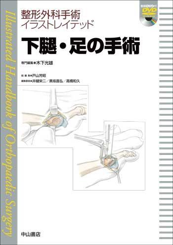 下腿・足の手術 1611