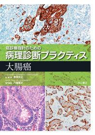 大腸癌 1245