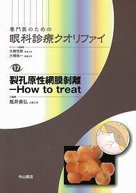 裂孔原性網膜剥離−How to treat 1291