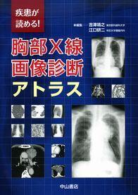疾患が読める! 胸部X線画像診断アトラス 1233