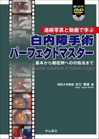 連続写真と動画で学ぶ 白内障手術パーフェクトマスター —基本から難症例への対処法まで—[動画+本文PDF]DVD付 1328